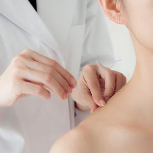 accupuncture needling session neck treatment procedure
